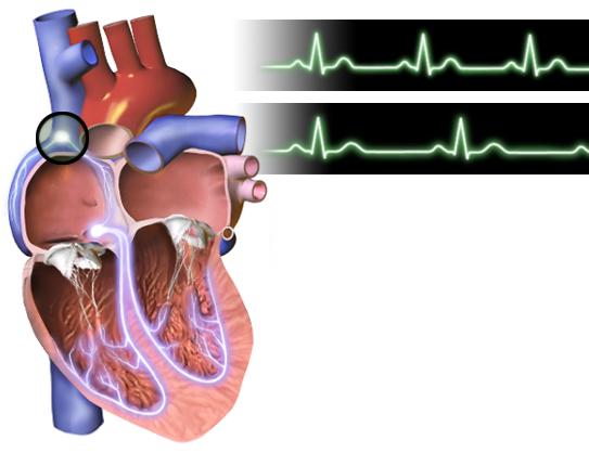 Nhịp tim chậm không làm tăng nguy cơ bị bệnh tim mạch