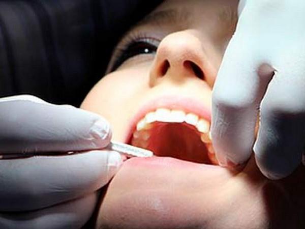 Bào chế thành công thực phẩm chức năng ngăn ngừa bệnh răng miệng